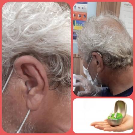 تجویز سمعک Audeo m50 فوناک (مدل RIC)  به همراه سمعک CROS برای مراجع 65 ساله مبتلا به کم شنوایی عمیق در گوش راست و کم شنوایی شدید در گوش چپ