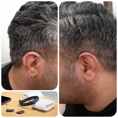 تجویز سمعک Zerena 9 برنافون (مدل RIC) برای مراجع 35 ساله مبتلا به کم شنوایی شدید در گوش چپ و کم شنوایی متوسط در گوش راست