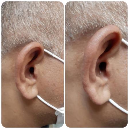 تجویز سمعک OPN 1 اتیکن (مدل داخل گوشی) برای مراجع 55 ساله مبتلا به کم شنوایی شدید در گوش چپ و کم شنوایی متوسط در گوش راست
