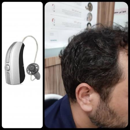 تجویز سمعک Evoke 440 ویدکس (مدل RIC) برای مراجع 35 ساله مبتلا به کم شنوایی متوسط دوطرفه در فرکانس های بالاتر از 2 KHz