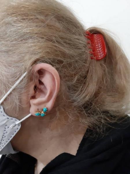 تجویز سمعک OPN 3 در یک فرد 55 ساله با کم شنوایی متوسط تا شدید