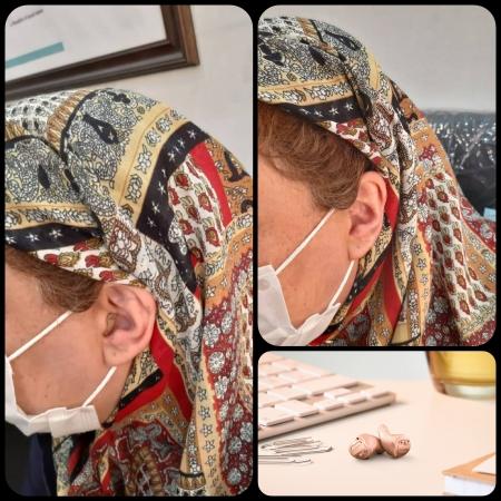 تجویز سمعک Insio 3Nx زیمنس (مدل CIC) برای مراجع 47 ساله مبتلا به کم شنوایی انتقالی شدید در هر دو گوش