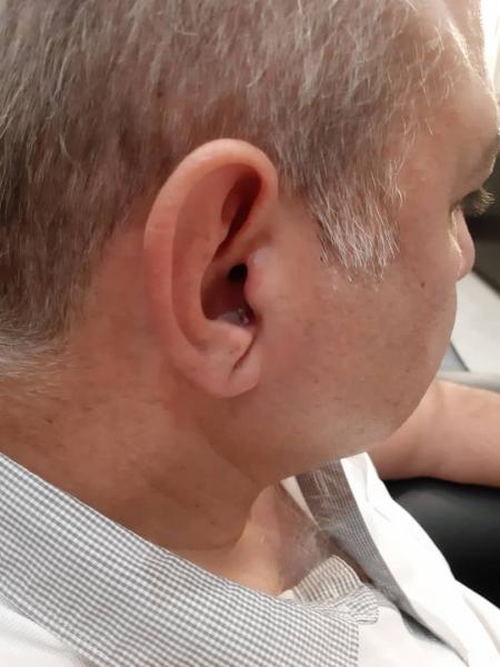 تجویز سمعک 5 nx زیمنس (مدل Silk) برای مراجع مبتلا به کم شنوایی متوسط دوطرفه در فرکانس های بالا
