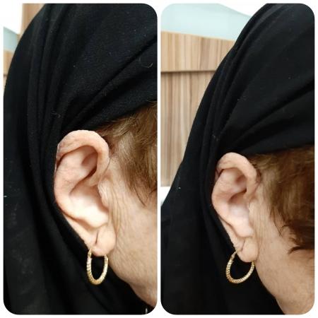تجویز سمعک Evoke 220 ویدکس (مدل RIC) برای مراجع 70 ساله مبتلا به کم شنوایی متوسط دوطرفه