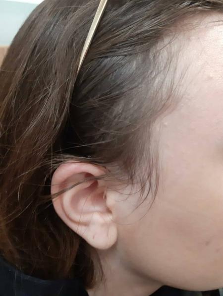 تجویز سمعک pure 3nx زیمنس (مدل RIC) برای مراجع 22 ساله مبتلا به کم شنوایی متوسط دوطرفه