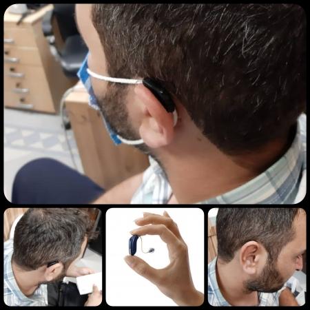 تجویز سمعک Opn اتیکن (مدل RIC) رنگ مشکی برای مراجع 35 ساله مبتلا به کم شنوایی متوسط دوطرفه
