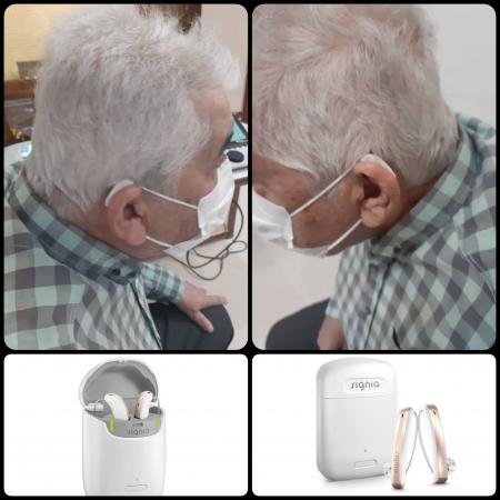 تجویز سمعک Styletto 3x زیمنس (مدل RIC) برای مراجع 73 ساله مبتلا به کم شنوایی متوسط تا شدید در هر دو گوش