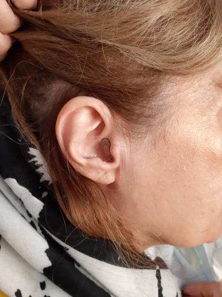 تجویز سمعک داخل گوشی زیمنس در یک فرد ۶۵ ساله با کم شنوایی متوسط تا شدید